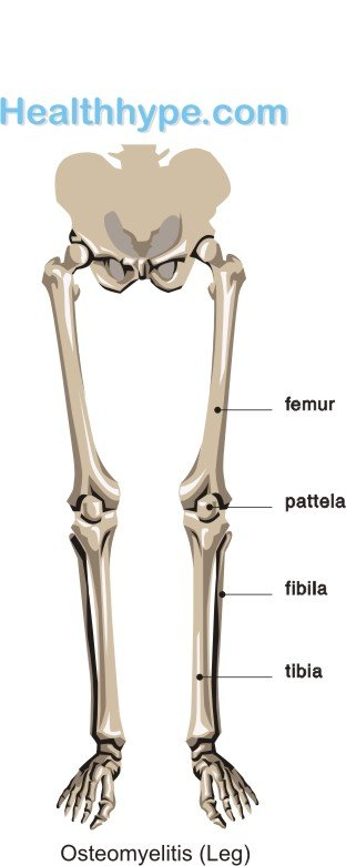 Osteomyelitis of the Leg
