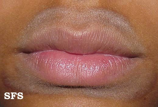 Rash Around Mouth Lips Causes Pictures Treatment