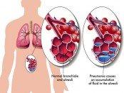 lung fluid