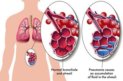 Fluid in the Lungs (Pulmonary Edema) Causes and Treatment