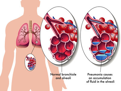 lung infection pneumonia