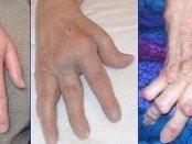 rheumatoid arthritis of the hand