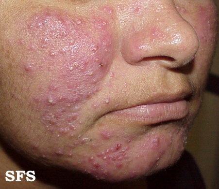 acne rosacea with pimples