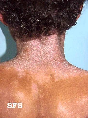 5 Causes Of Skin Rash Behind The Ears With Pictures