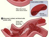 effects of sickle cell anemia
