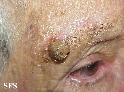Skin cancer - squamous cell carcinoma on the face