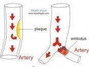 Slow Blood Flow in Artery