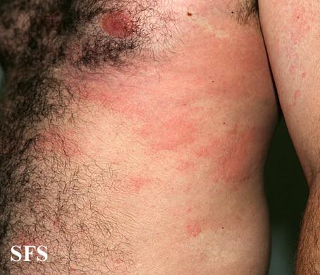 Photo hives - Troubadour los angeles