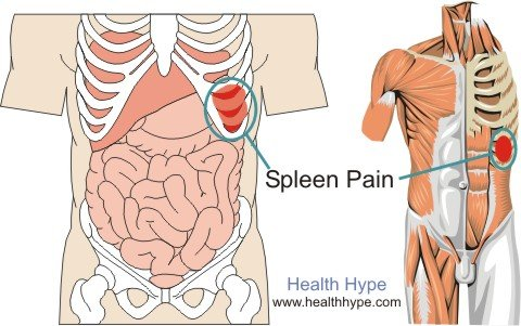 Spleen Pain Location Pictures Symptoms And Causes Healthhype Com
