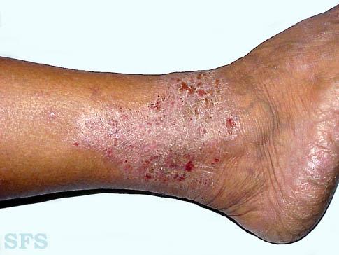 Stasis (gravitational) eczema