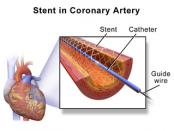stent artery