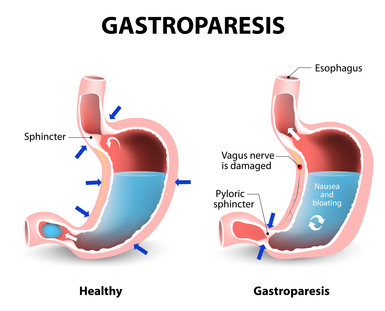 Gastroparesis and Stomach Emptying