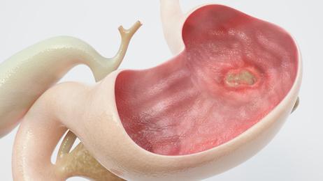 Healthhype com | Current Health Articles on Symptoms