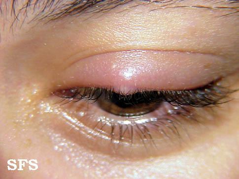 """orzuelo """"ancho ="""" 320 """"alto ="""" 240 """"srcset ="""" http://www.healthhype.com/wp-content/uploads/stye1.jpg 485w, http://www.healthhype.com/wp-content/ uploads / stye1-300x225.jpg 300w, http://www.healthhype.com/wp-content/uploads/stye1-174x131.jpg 174w, http://www.healthhype.com/wp-content/uploads/stye1- 70x53.jpg 70w """"sizes ="""" (max-width: 320px) 100vw, 320px """"/></p><p> <img class="""