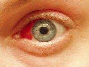 Bleeding in the eye (subconjunctival hemorrhage)