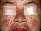 systemic lupus erythematosus_SLE_face