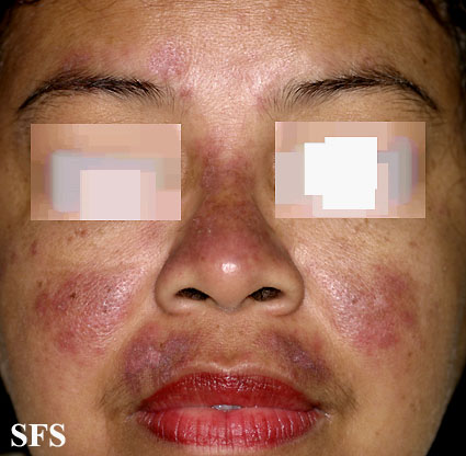 Recurring facial rashes