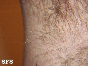 trichomycosis armpit