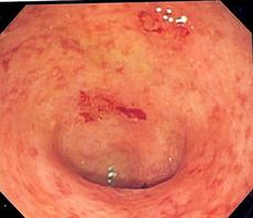 Ulcerative Colitis Picture 1