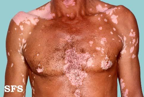 Kidney Disease And Skin Darkening Kidney Failure Disease